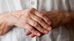arthritic-hands