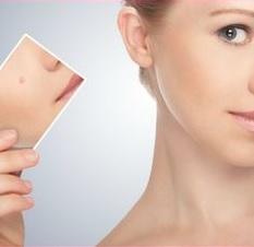 acne mujer cara