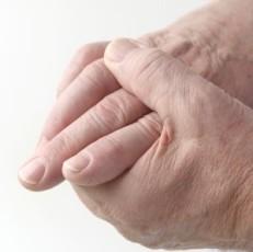 reumatismo manos articulaciones dolor