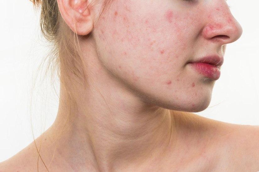 acne-rosacea